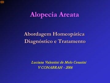 Alopecia areata x Homeopatia
