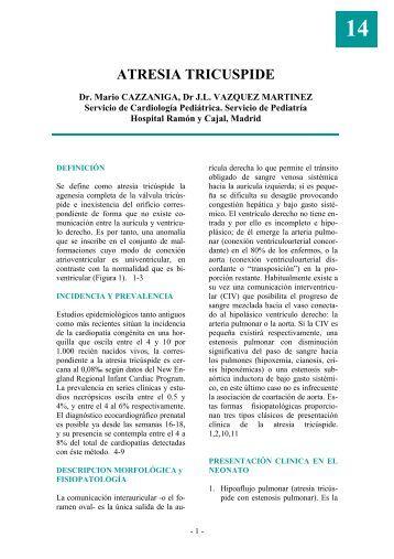 Atresia tricúspide - Asociación Española de Pediatría
