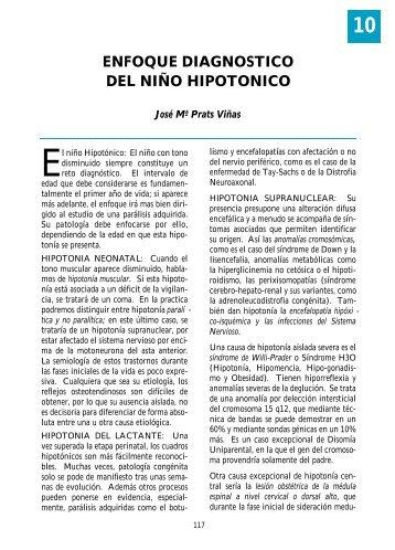 ENFOQUE DIAGNOSTICO DEL NIÑO HIPOTONICO