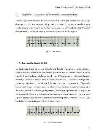 1 IV. Diagnóstico y Tratamiento de las Arritmias supraventriculares ...