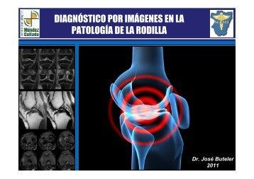 DIAGNÓSTICO POR IMÁGENES EN LA PATOLOGÍA DE ... - SCEMT