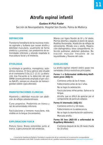 Atrofia espinal infantil - Asociación Española de Pediatría