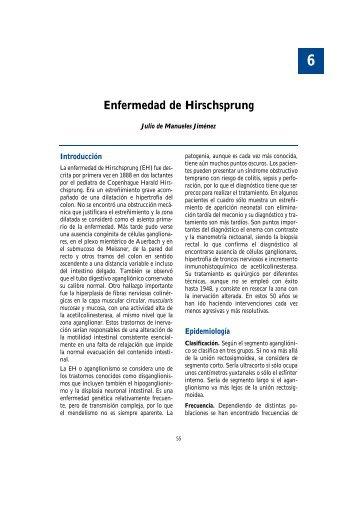 6. Enfermedad de Hirschsprung - Asociación Española de Pediatría