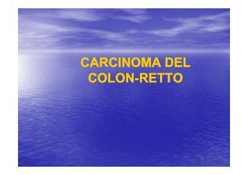 Carcinoma del colon-retto - Facoltà di Medicina e Chirurgia