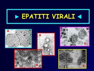 EPATITI VIRALI  - Facoltà di Medicina e Chirurgia