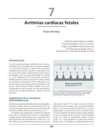 Arritmias cardiacas fetales - Axon