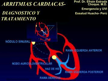 Arritmias Cardiacas: Diagnostico y Tratamiento - Reeme.arizona.edu