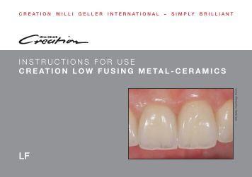 Creation Zi Manual Jensen Dental