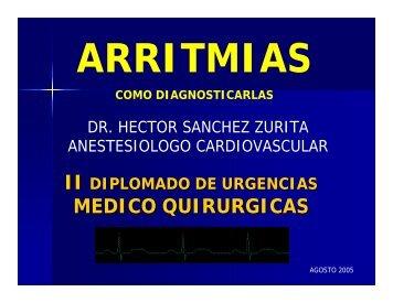 Arritmias: Como diagnosticarlas - Reeme.arizona.edu