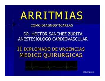Arritmias: Como diagnosticarlas - Reeme.arizona.edu