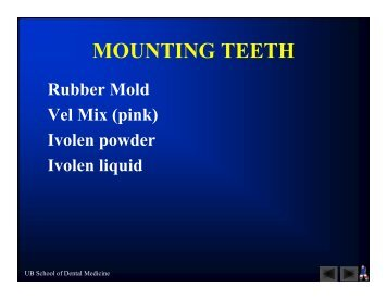 MOUNTING TEETH