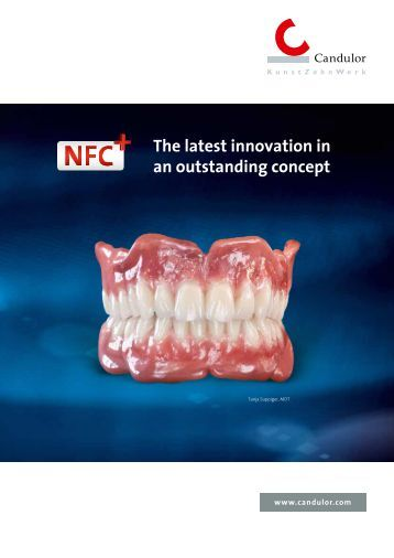 NFC+ teeth - Candulor