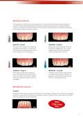 NFC+ teeth - Candulor - Page 5