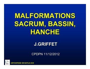 Malformations sacrum, bassin, hanche - CHU Grenoble