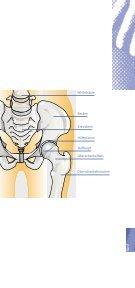 das künstliche Hüftgelenk - handchirurgie-wiesbaden.de - Seite 5