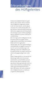 das künstliche Hüftgelenk - handchirurgie-wiesbaden.de - Seite 6