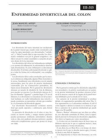 Enfermedad diverticular del colon. - sacd.org.ar