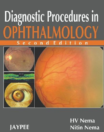 Diagnostic Procedures in OPHTHALMOLOGY SECOND EDITION