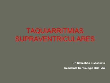 Arritmias Supraventriculares - cardiomil.com.uy