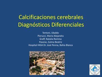 Calcificaciones cerebrales Diagnósticos Diferenciales