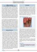 Miopatia Peitoral Profunda - Aviagen - Page 2