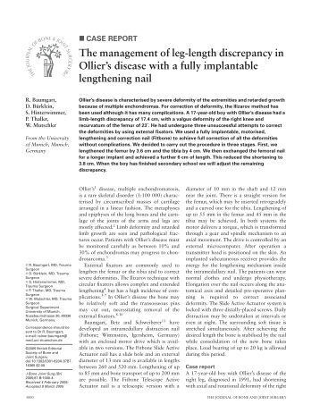The management of leg-length discrepancy in Ollier's disease with a ...