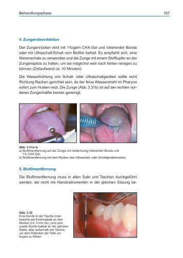 Full-Mouth-Disinfection: Behandlungsphase - Spitta