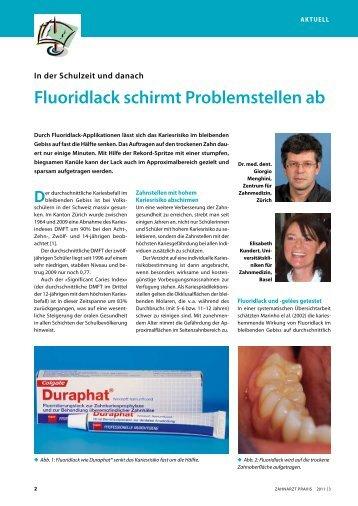 Fluoridlack schirmt Problemstellen ab - Aktuell