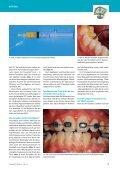 Fluoridlack schirmt Problemstellen ab - Aktuell - Seite 2