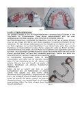 484 kB pdf - Sanfte Zahnklammern - Page 4