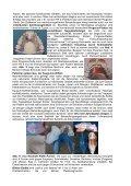 Hilfestellung zur gesunden Gebissentwicklung - Sanfte Zahnklammern - Page 2