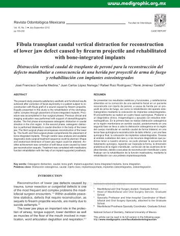 Fibula transplant caudal vertical distraction for ... - edigraphic.com