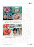 한국 성형외과 재건 미세수술의 조망 - KoreaMed Synapse - Page 4