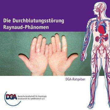 Die Durchblutungsstörung Raynaud-Phänomen - der Deutschen ...
