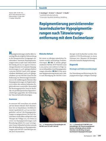 Repigmentierung persistierender laserinduzierter Hypopigmentie ...