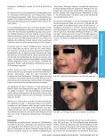 Lasertherapie vaskulärer Hautveränderungen ± Aktueller Stand - Seite 4