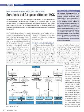 Sorafenib bei fortgeschrittenem HCC - Hepatitis&More