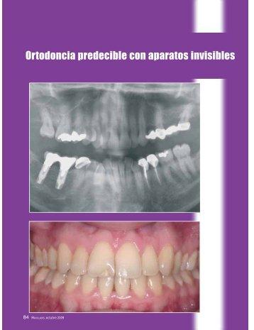 Ortodoncia predecible con aparatos invisibles - Menendez ...