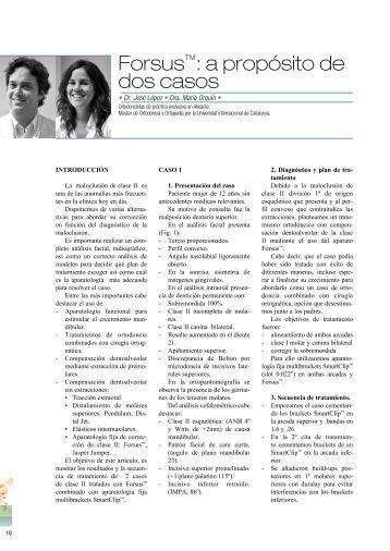 Artículo Innova - Ortodoncia Novasmile