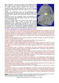 pdf (0,22 MB) - Page 4