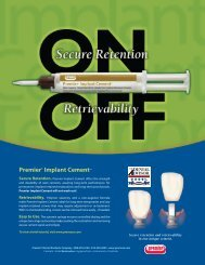 Premier® Implant Cement™ - Premier Dental