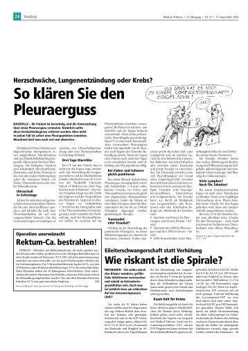 So klären Sie den Pleuraerguss - longlife.medical-tribune.de ...