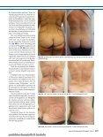 ästhetische chirurgie - Dr. Sandhofer - Seite 7