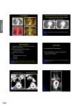 View Presentation - Society of Thoracic Radiology - Page 4