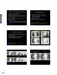 View Presentation - Society of Thoracic Radiology - Page 6