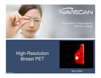 High-Resolution Breast PET - Medicor