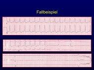 Bradykarde Herzrhythmusstörungen