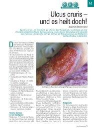 Ulcus cruris – und es heilt doch! - ratgeber-fitness.de