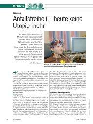 Anfallsfreiheit – heute keine Utopie mehr - ratgeber-fitness.de
