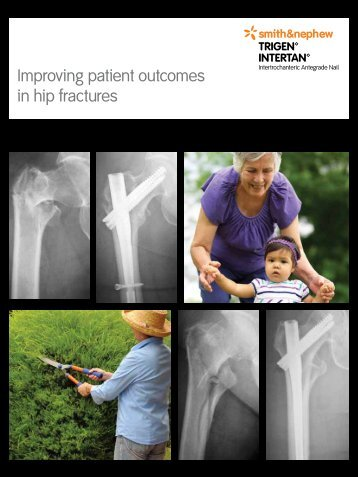 Improving patient outcomes in hip fractures - Smith & Nephew